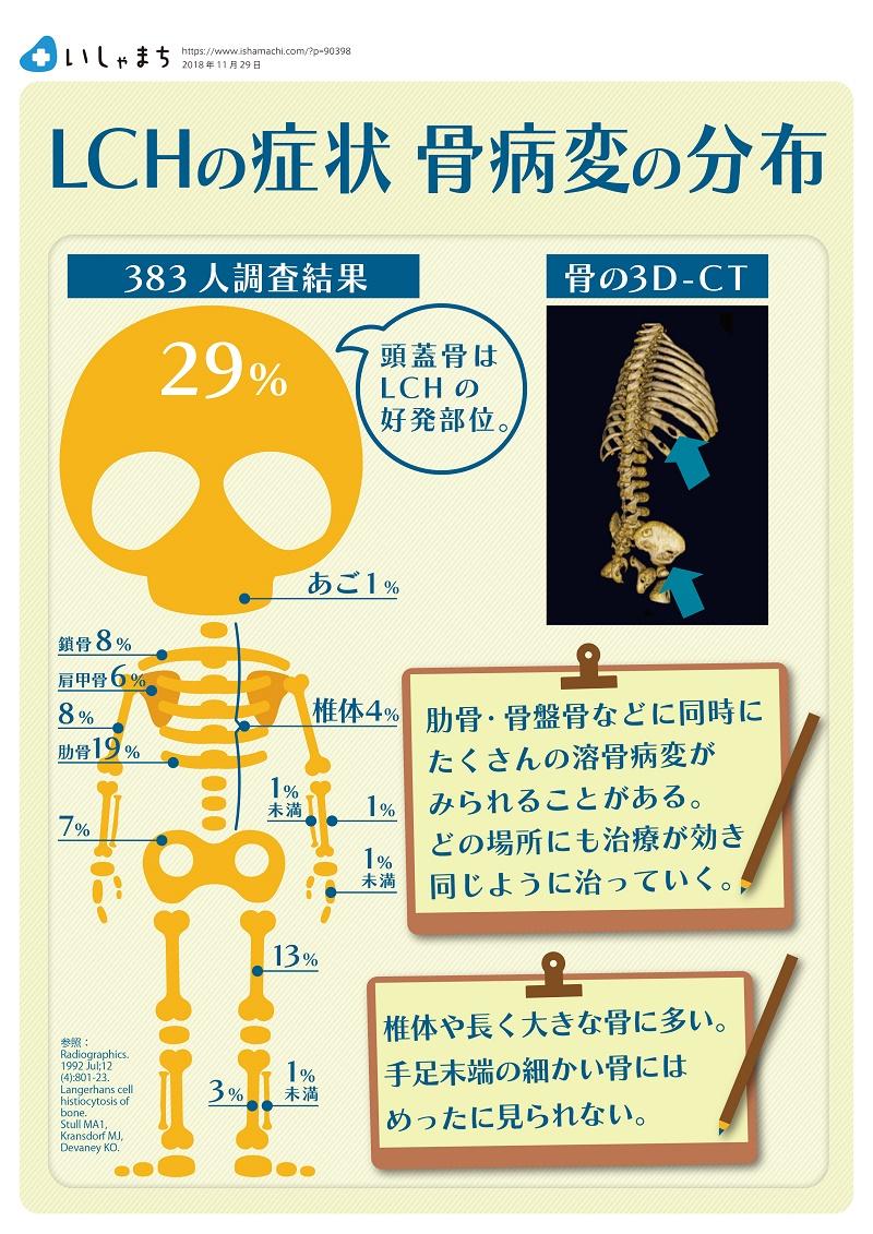 LCHの症状 骨病変の分布