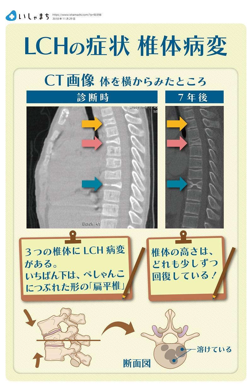 LCHの症状 椎体病変