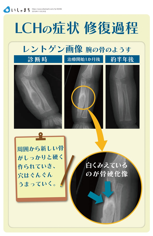 LCHの症状 骨の修復過程